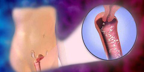 درمان عفونت قارچی واژن