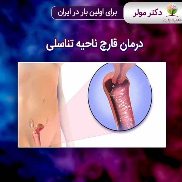 درمان قارچ ناحیه تناسلی