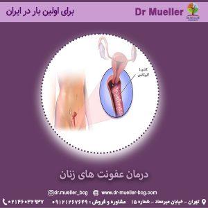 درمان عفونت های زنان